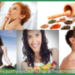 Do Hypothyroidism Natural Treatment Options Really Work for Everyone?